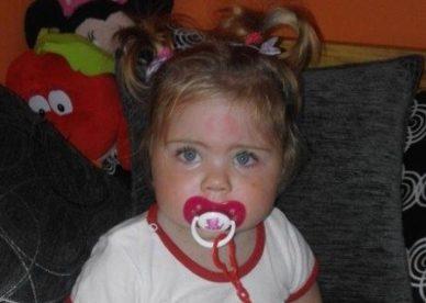 Mała Amelka potrzebuje pomocy!